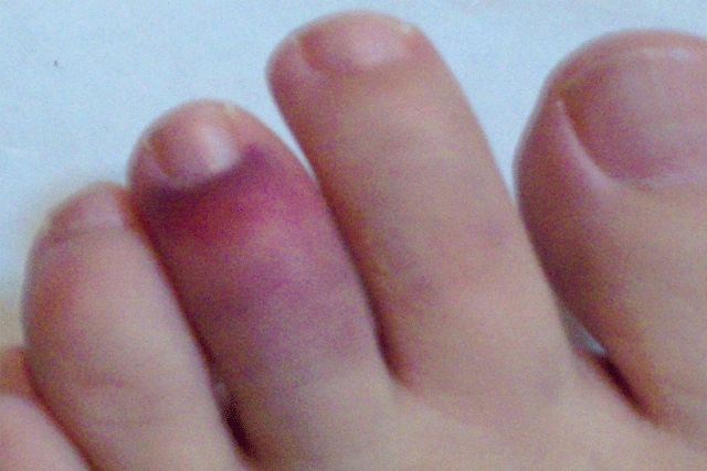 foot-finger-fracture1