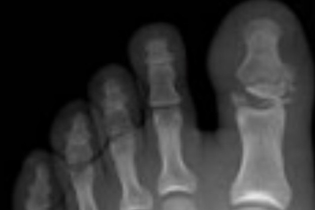 foot-finger-fracture5
