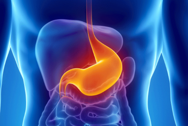 gastric-ulcer2